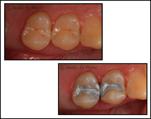Silver, or amalgam, dental fillings are save, strong, and long-lasting.