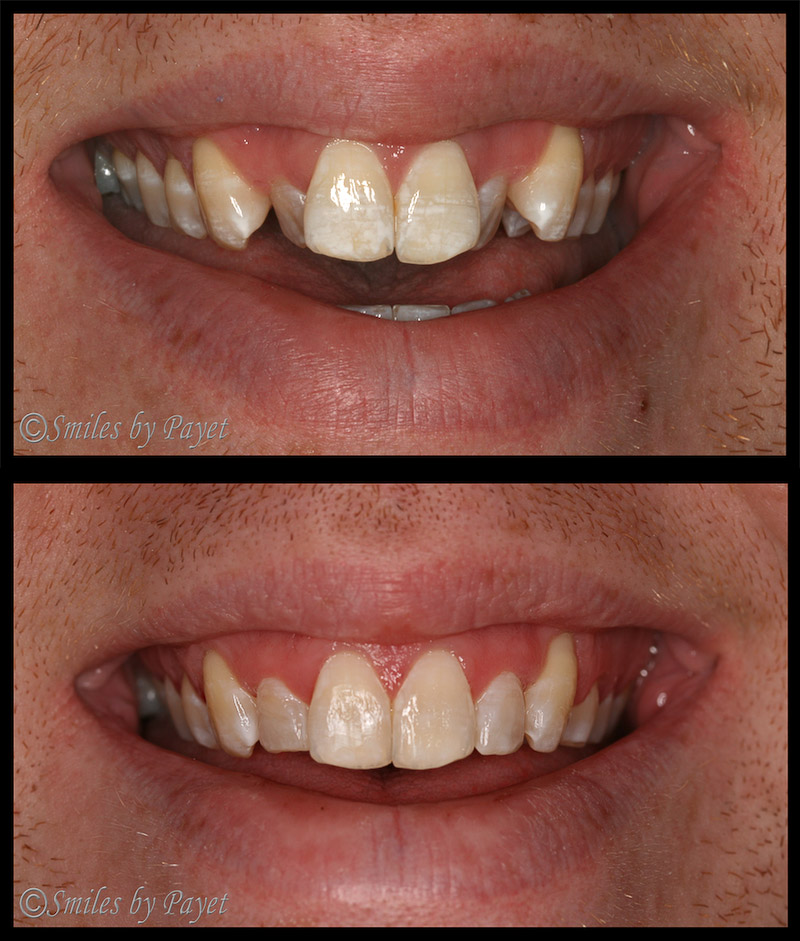 Crowded front teeth straightened with Six (6) Month Braces
