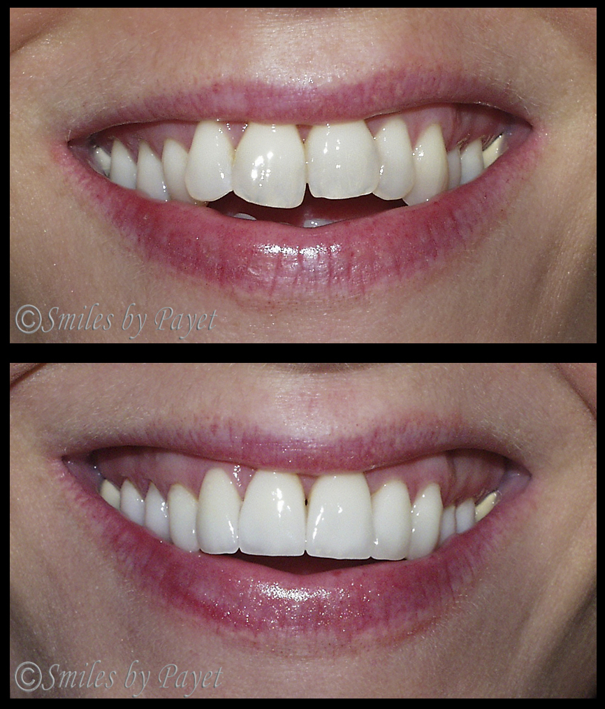 Crowded teeth made straight in only 3 weeks with 16 Porcelain Veneers