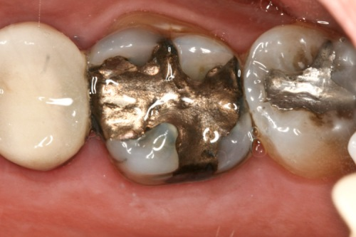 An old mercury-silver (amalgam) dental filling that needs to be replaced.