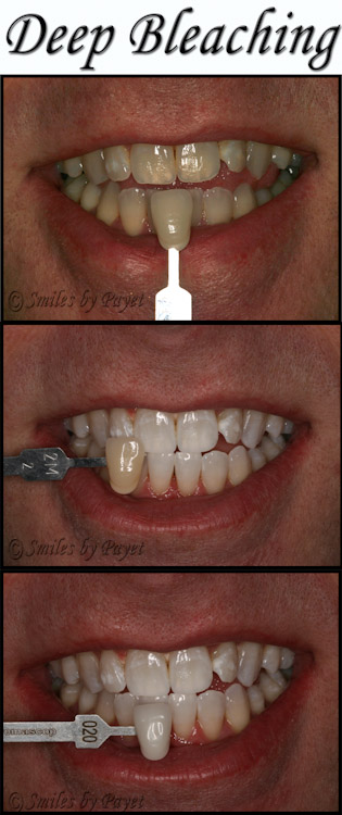 example of Deep Bleaching(TM) for teeth whitening