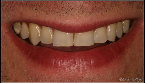 Before photo of Craig, who chose 8 Porcelain Veneers by cosmetic dentist Dr. Charles Payet in Charlotte, NC.