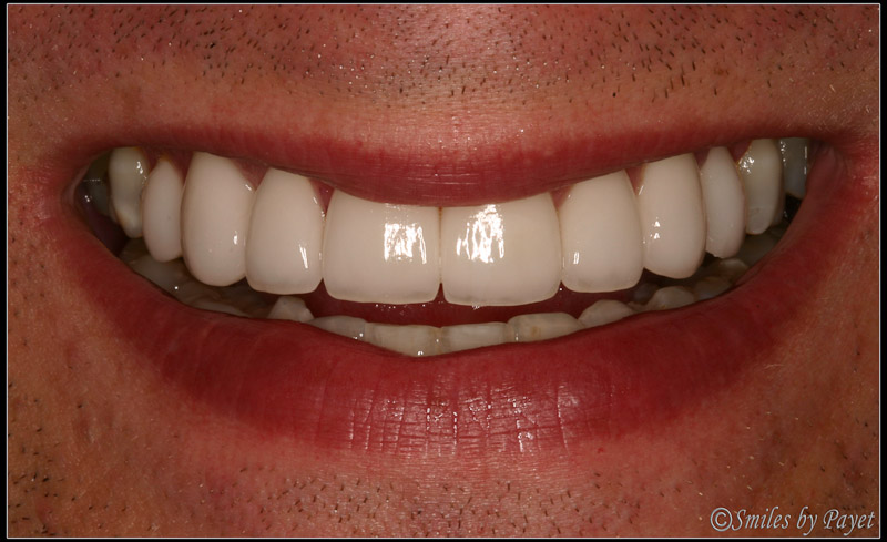 After photo of Craig, who chose 8 Porcelain Veneers by cosmetic dentist Dr. Charles Payet in Charlotte, NC