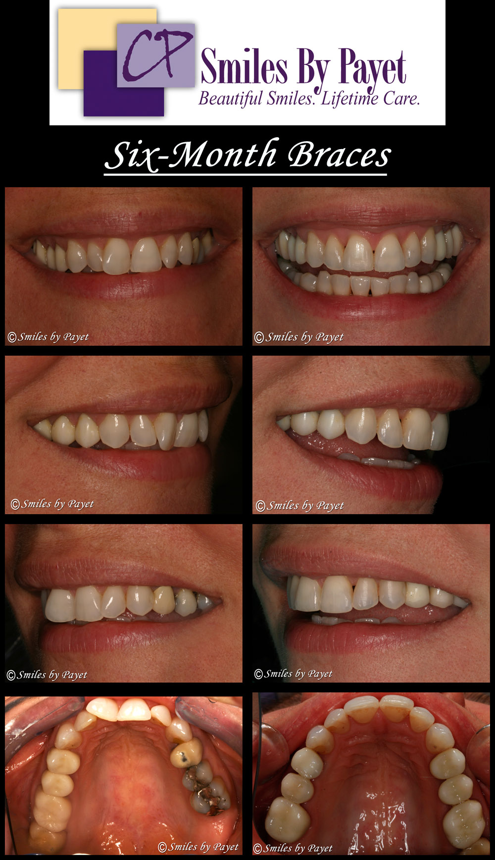 6 (Six) Month Braces treatment in the dental office of Dr. Charles Payet in Charlotte NC