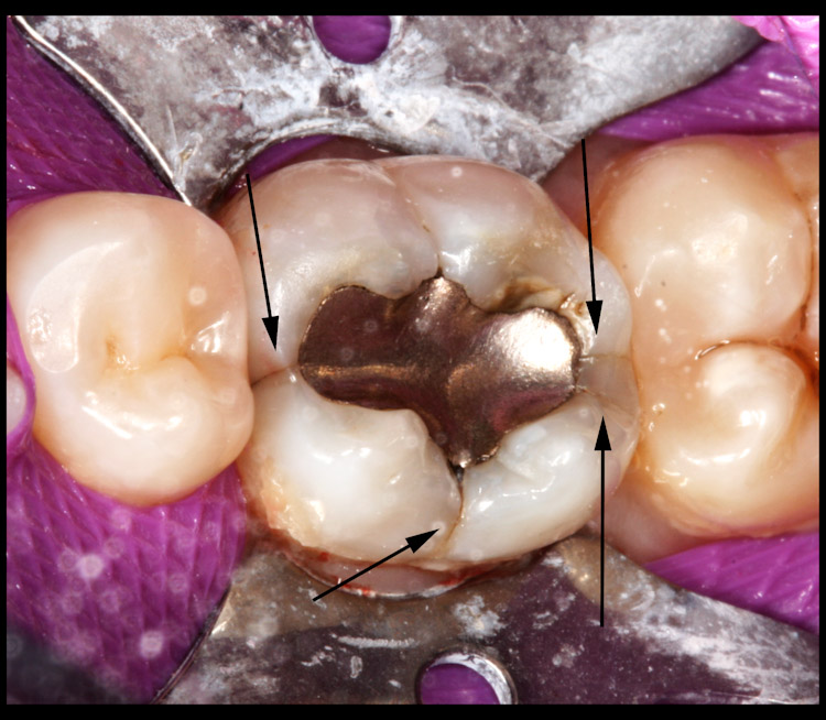 What does a cracked tooth look like
