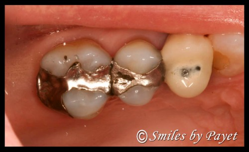 whats-hiding-under-old-silver-fillings-11