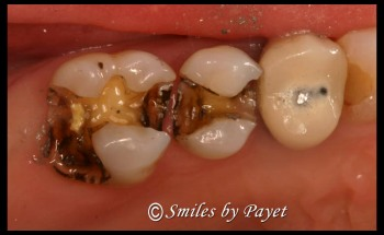tooth decay under an old dental filling