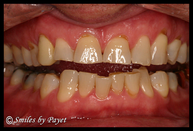 Teeth damaged by grinding & clenching become short, chipped, worn, jagged, sharp, and ugly