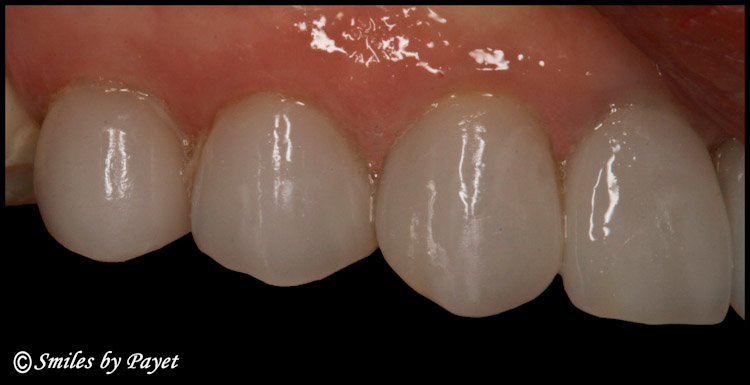 A Beautiful CEREC veneer
