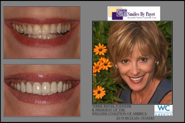 20 Porcelain Veneers Before and After Pictures