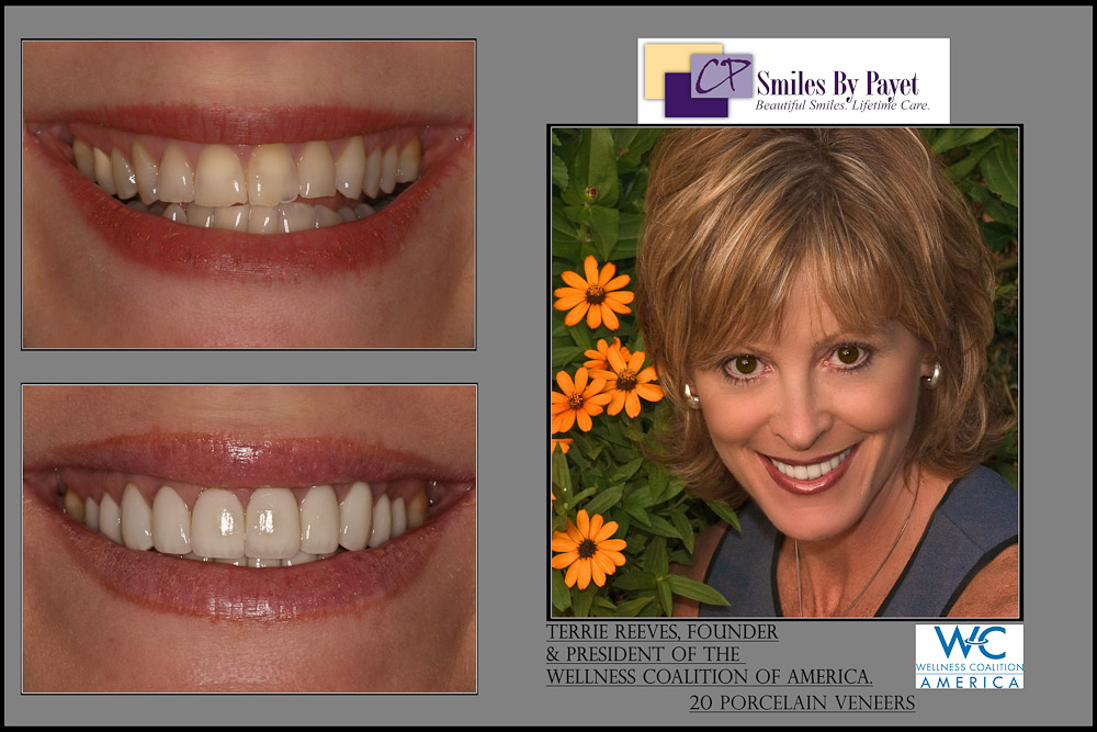 Before and After Pictures of 20 Porcelain Veneers, Portrait of Terrie Reeves