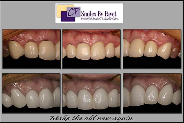 Replacing ugly old porcelain-and-metal crowns with a dark grey line at the gums with porcelain-to-gold crowns that look beautiful, natural, and white - to cover tetracycline-stained teeth.