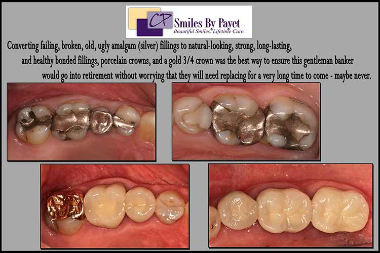 Broken silver fillings with cavities, fixed with porcelain dental crowns, a gold dental crown