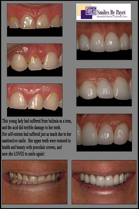 Cosmetic dentist Dr. Charles Payet, of Charlotte NC, performed a Smile Makeover with Porcelain Crowns to Restore these Teeth Damaged by Acid Erosion/Bulimia