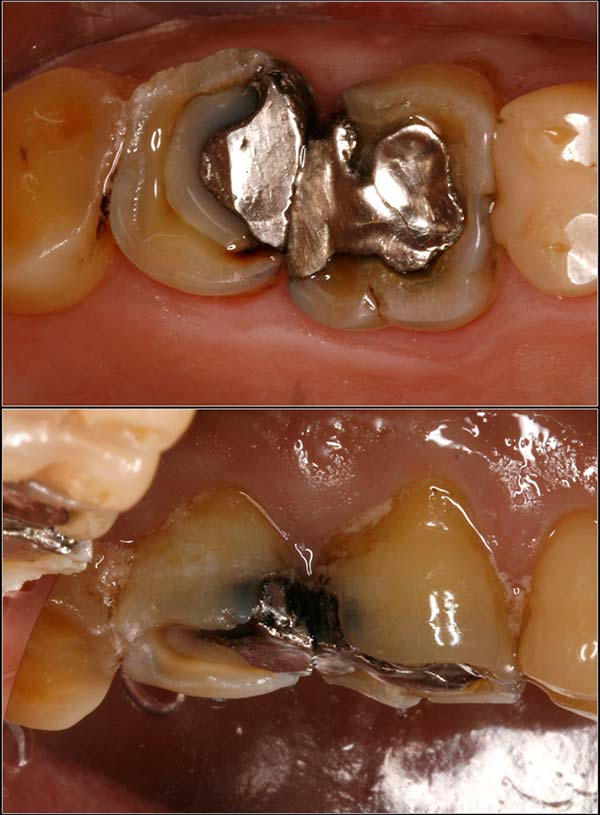 Amazing - a dental insurance company said these broken and decayed teeth don't need crowns.  Can you believe it?