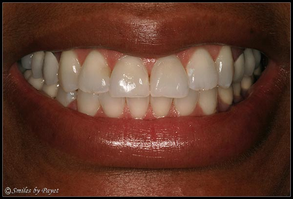 Smile Makeover to Correct a Gummy Smile - AFTER picture