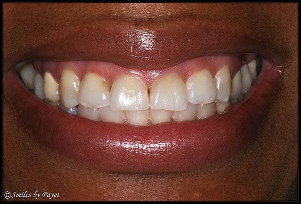 Smile Makeover to Correct a Gummy Smile - BEFORE picture