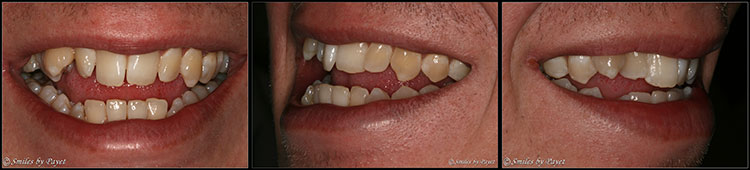 A Six-Month Braces case to straighten crooked teeth in Charlotte