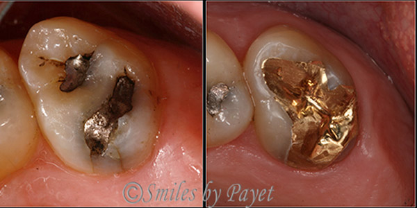 Family dentist Dr. Charles Payet used a gold onlay to fix a cracked tooth that had an old silver filling.