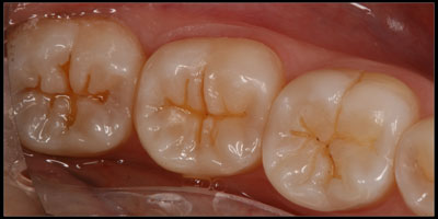 Teeth after small cavities were cleaned out with very small preps, possible because of the dental microscope.