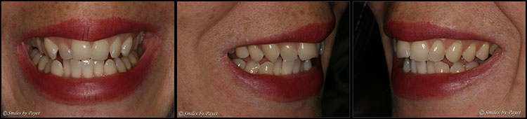 Example Patient #2 of Six Month Adult Braces with Dr. Payet in Charlotte NC.